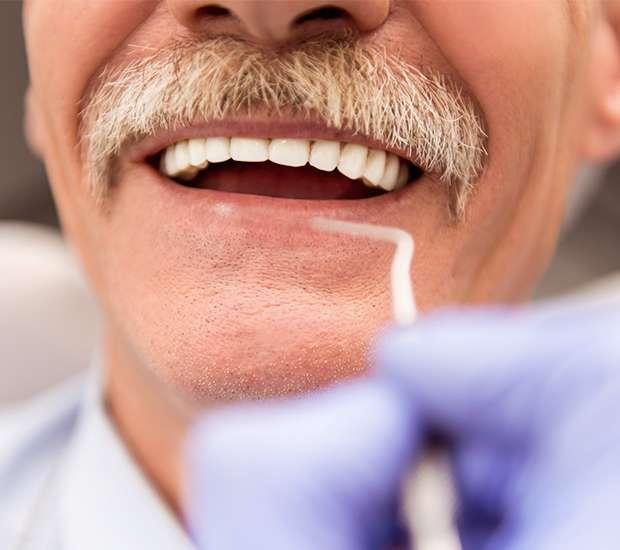 King George Adjusting to New Dentures