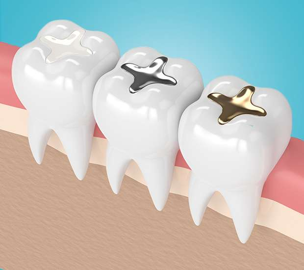 King George Composite Fillings