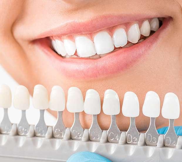 King George Cosmetic Dentist