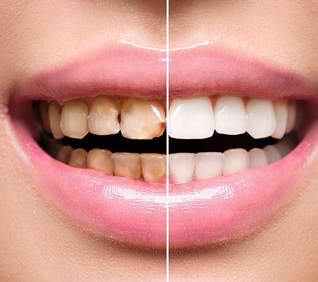 King George Dental Implant Restoration
