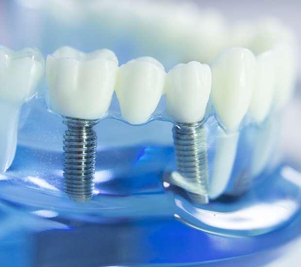 King George Dental Implants