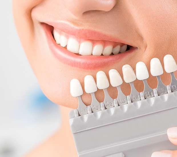 King George Dental Veneers and Dental Laminates