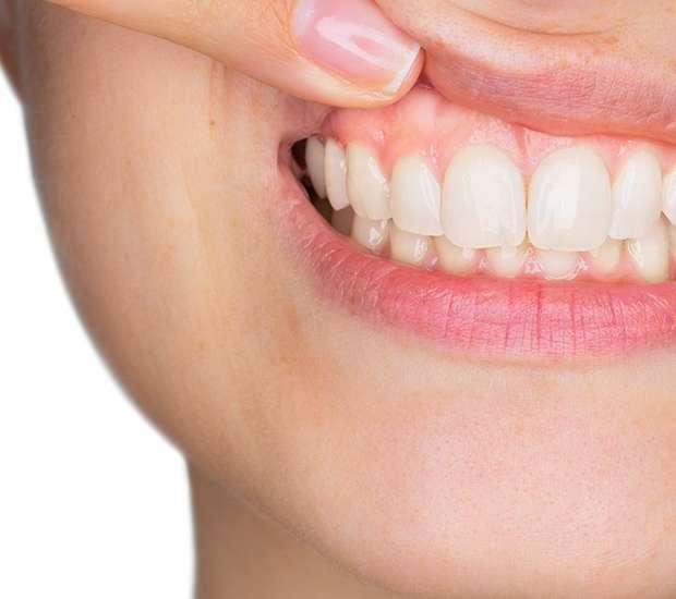 King George Gum Disease