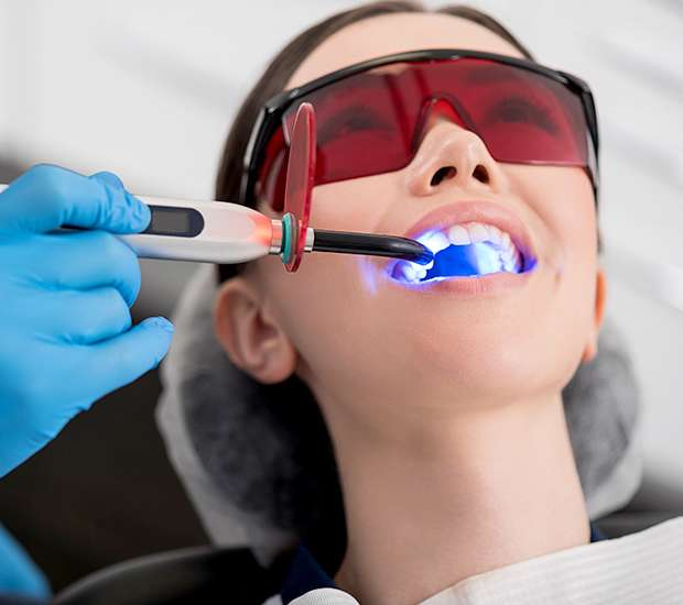 King George Professional Teeth Whitening